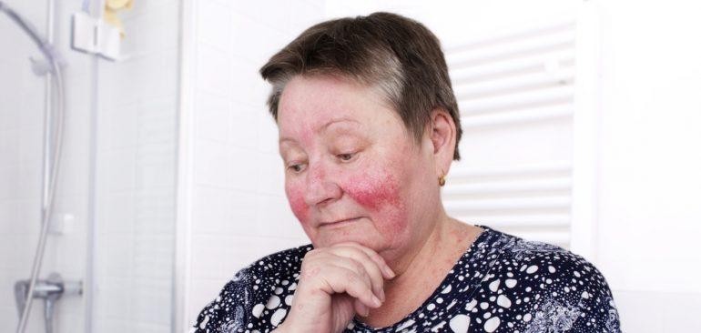 Eldre kvinne med rosacea