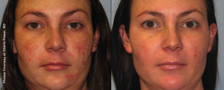 Rosacea - før og etter laserbehandling