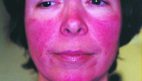 Rosacea – en underdiagnostisert og fortsatt noe gåtefull hudsykdom
